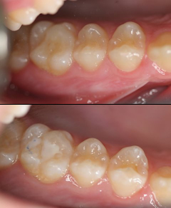 Dental Sealants Flushing